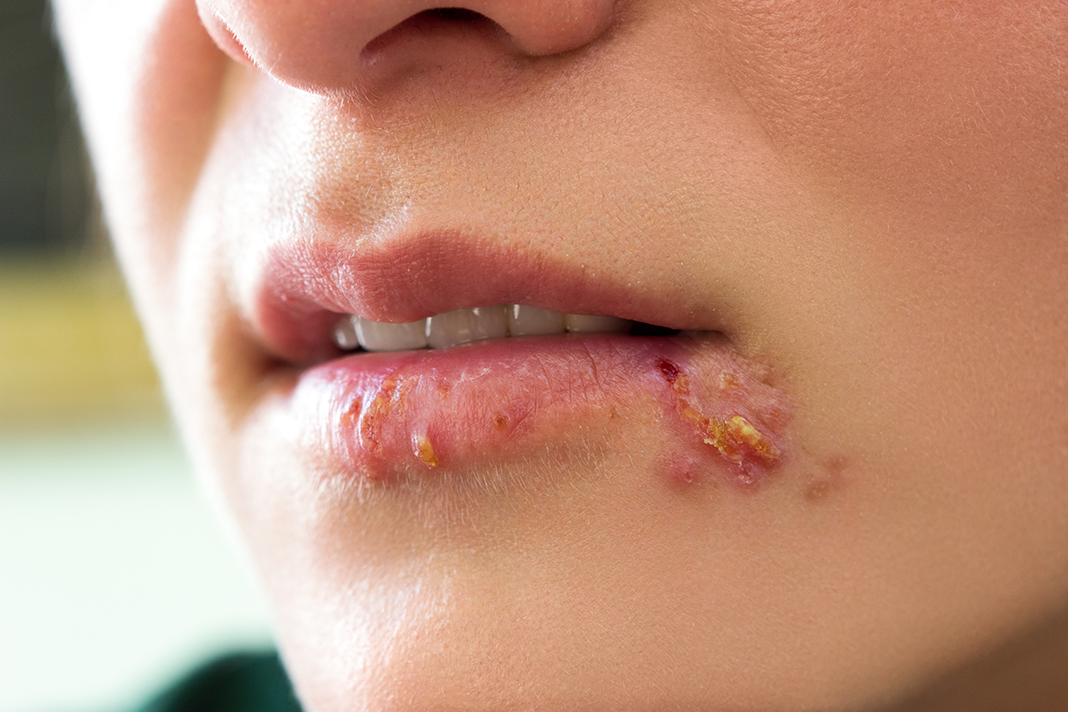 Can you give yourself herpes if have a cold sore