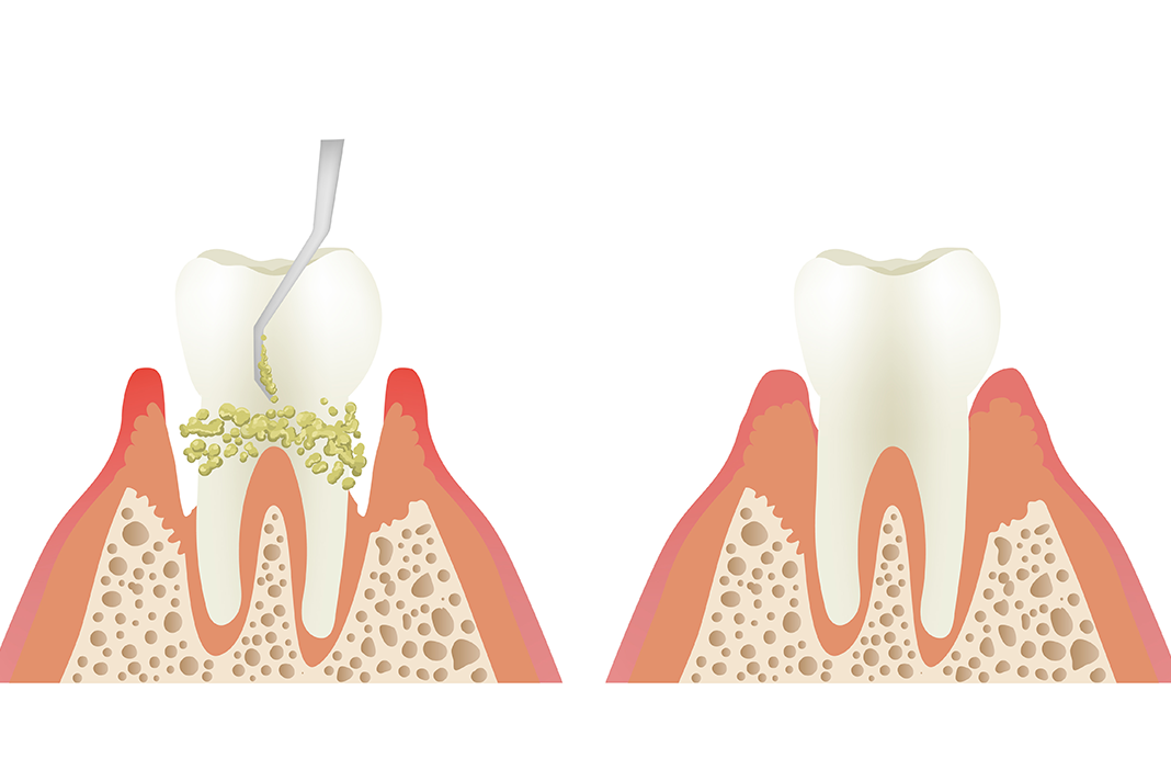 The Education Process Of Prophylaxis Vs Scaling And Root Planing