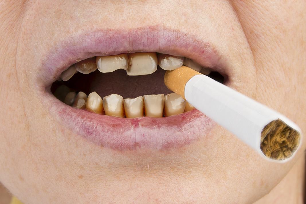 [Image: smoker-smoking-dental-health.jpg]