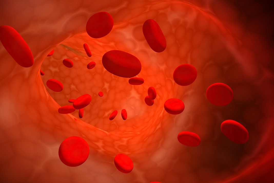 iron deficiency anemia guidelines aap