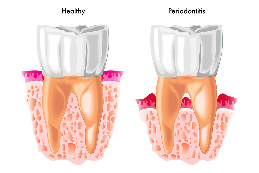 QUIZ: Test Your Periodontitis Knowledge - Today's RDH